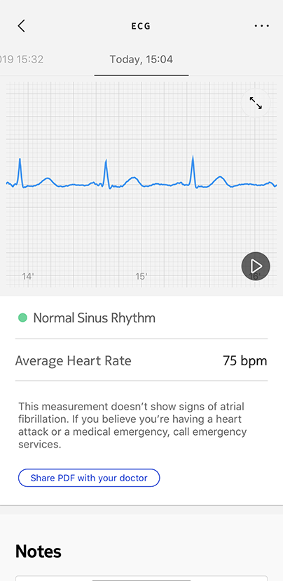 ecg-measurement-graph-ok.png