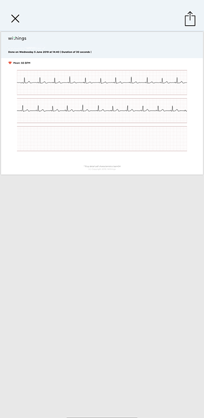 ecg-pdf-bpmcore-doctor.png